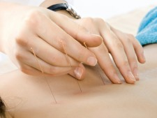Profitable Acupuncture Practice located in N. Palm Beach